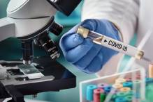 Boletim coronavírus nº 218 – 22/10/2020