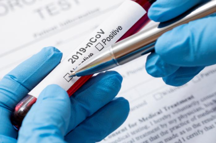 Boletim coronavírus - Edição Extra