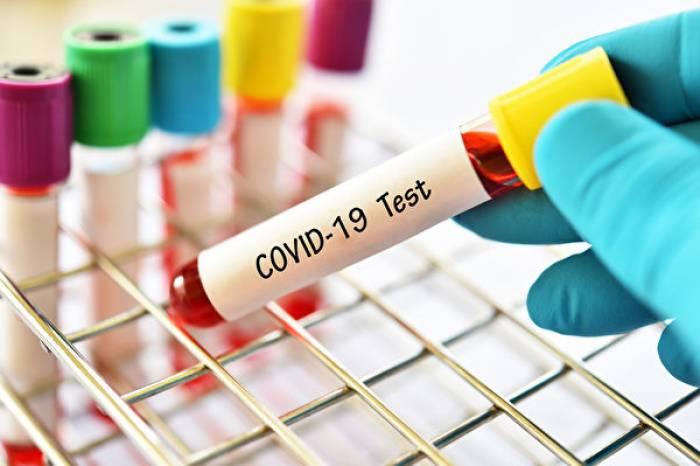 Vigilância Epidemiológica encerra investigações de óbitos por coronavírus