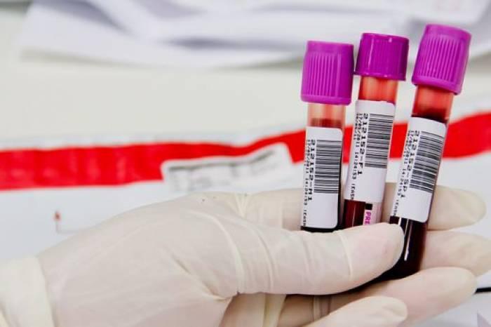 Boletim Coronavírus nº 441 – 02/06/2021
