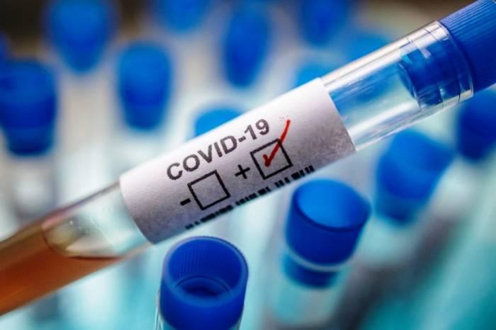Boletim coronavírus nº 129 – 25/07/2020