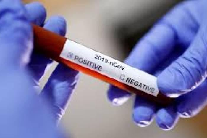 Boletim coronavírus nº 75 – 01/06/2020