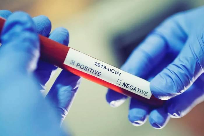 Boletim Coronavírus nº 413 – 05/05/2021