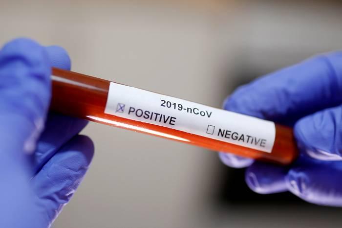 Boletim coronavírus nº 182 – 16/09/2020
