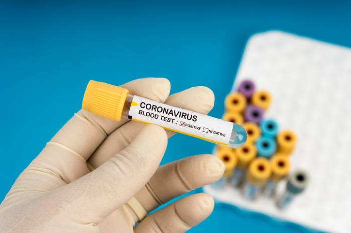 Boletim Coronavírus nº 135 – 31/07/2020