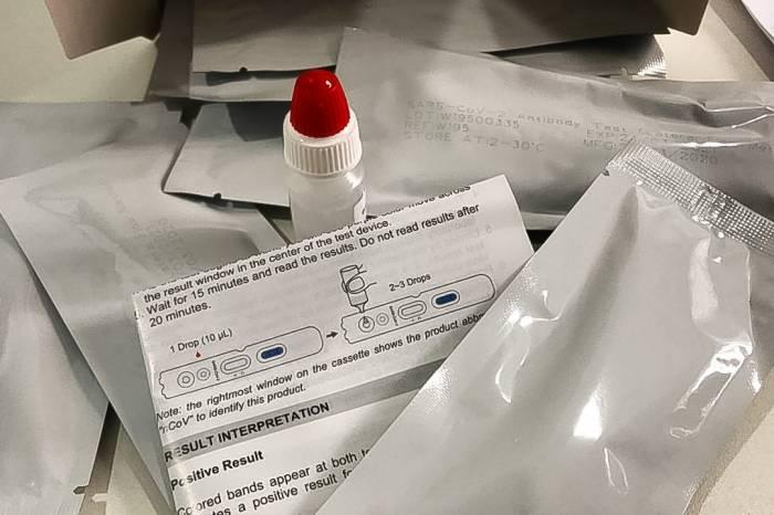 Pelotas alcança os  4.051 testes para detectar casos de Covid-19
